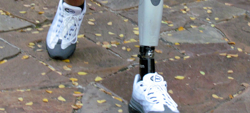 Interview with Thomas Baker – client of Advanced Prosthetic Research