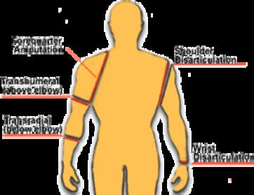 transtibial amputation
